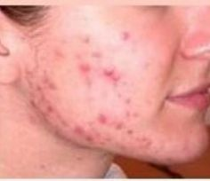 If you thinking how to get rid of acne fast using #NaturalRemedies, then following solutions can help you bid farewell to #Acne prone skin. http://buff.ly/2nSP0by #AcneHomeRemedy #HomeRemedy #RemoveAcne #Glowingskin #BeautifulSkin