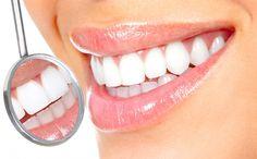 Белоснежная улыбка — отбеливаем зубы дома