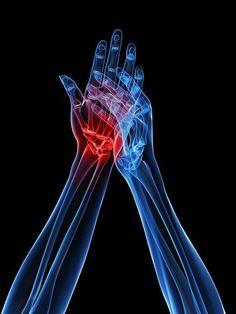 Скорая помощь от боли в суставах — дешево и эффективно! | Новость | Всеукраинская ассоциация пенсионеров
