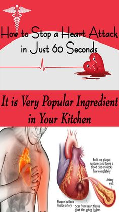 Did you know that simple but powerful ingredient actually can prevent a heart attack in just one minute? Herbal Remedies, Health Remedies, Home Remedies, Natural Remedies, Natural Medicine, Herbal Medicine, Health And Beauty, Health And Wellness, Alternative Therapies