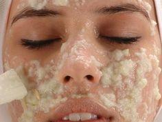 Пигментные пятна на лице могут возникнуть в следствие различных причин: воздействия солнечных лучей, приема оральных контрацептивов, акне и т.д.