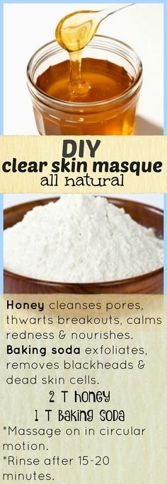 How To Clear Blackheads, Skin Care Diy Blackheads, Face Mask For Blackheads, Facials For Blackheads, How To Prevent Breakouts, Mask For Pores, Mosturizing Face Mask, Blackhead Face Mask, Remedies For Blackheads
