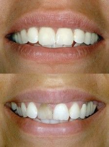 Bend implant dentists, the doctors in the clinic are very experienced and have treated thousands of patients, so they can be the best person for you too, to treat your ailments. http://bendimplantdentistry.com