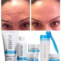 This results are OUTSTANDING! And achieved in the 3 short months. No needles an no expensive visits to the dermatologist office. Katherine is a friend and fellow consultant at Rodan + Fields. She used our REDEFINE line with the Amp MD roller and all but made her forehead wrinkles and expression lines disappear in 3 months!
