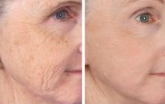 How To Fight Old Age With Simple Tips For Wrinkles Treatment Treatment: As women get older, they understandably become more concerned about how they look. They begin to notice small lines and wrinkles around their eyes, their mouth, and their forehead. Cosmetic Surgery Prices, Les Experts, Neck Wrinkles, Piel Natural, Eye Wrinkle, Wrinkle Creams, Wrinkle Remover, Grow Hair, Skin Care