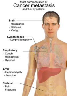 Cancer Symptoms  cancer mets- Bing Images