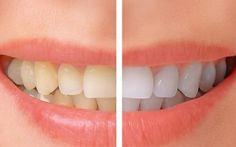 Denti ingialliti? Ecco come farli tornare veramente bianchi