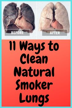 For people who smoke, their healthy lungs turn black with the deposition of TAR (cigarette chemical compounds) in the lungs. Detoxification or how to clean the lungs regularly will help smooth functioning and help get rid of toxins. After Quitting Smoking, Quit Smoking Tips, Lung Cleanse Detox, Smoking Lungs, Clear Lungs, Smoking Addiction, Natural Health Remedies, Herbal Remedies, Asthma Remedies