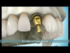 dental implant part2