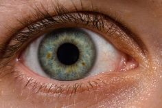 Cataract Surgery - What to Expect Before and After