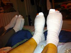 Oh what a difference a day makes! | Bunions Be Gone
