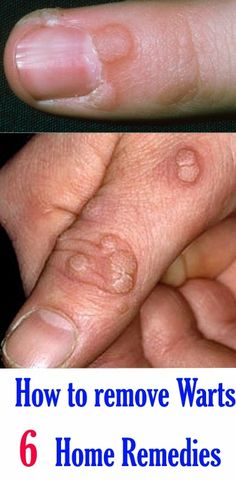 How to remove Warts 6 Home Remedies - Best Home Remedies