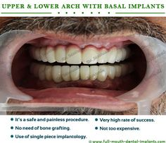 """#Basal Implants and Basal screws – no more bone grafts! The term """"Basal Implant"""" refers to the implants utilizing principles of the basal bone areas which are free of infection & continuation. These implants particularly designed for immediate loading and for that you will get your permanent fixed teeth immediately Just in 3 days http://full-mouth-dental-implants.com/basal-implants.php"""