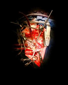 """""""Blood is only valuable if it circulates. During open-heart surgery, in which a patient's chest is opened to reveal the heart and surgery is performed on its internal structures, the heart can be stopped and drained of blood while the surgeons work. A cardiopulmonary bypass machine, also known as 'the pump', maintains the flow whilst valves are replaced, arteries widened, implants added or aneurysms repaired."""" Photographer: Elanor Farmer. Exhibit: Blood: A Circulatio..."""