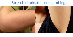 Stretch marks on arms and legs: They're a sign of muscle growth, when you're weight lifting or bodybuilding. They're not the nicest thing to look at, but they are like a badge of honor that you receive for putting in your precious time and dedication to the muscle game. Also, if you grew very rapidly during puberty, your skin might stretch too fast and far, resulting in stretch marks on your arms and legs or even your sides.