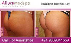 Fly to India for Brazilian Buttock Lift Surgery (also known as Butt Lift, Brazil Butt Lift, Brazilian Butt Lift) at Less Price/Cost Compare to Gaborone, Francistown, , Botswana at Leading Cosmetic Surgery Center in Mumbai, India- Alluremedspa, Butt lift is Combination of Liposuction and Fat Grafting to Enlarge the Buttocks by Best Brazilian Buttock Lift Surgeon/Doctor Dr. Milan Doshi.