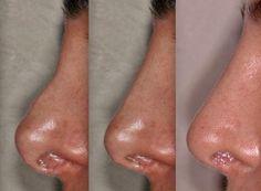 Rhinoplasty surgery in Delhi for those seeking quality along with affordibility  #nosejob #nosereshaping #nosesurgery #reductionrhinoplasty #augmentationrhinoplasty #openrhinoplasty #closedrhinoplasty #tiprhinoplasty