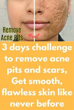 Pimples on face removal tips home remedies
