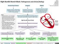 Right Bundle Branch Block: Pathogenesis and clinical findings Cardiac Nursing, Pharmacology Nursing, Bundle Branch Block, Nursing School Notes, Nursing Schools, Ekg Interpretation, Respiratory Therapy, Human Anatomy And Physiology, Medical Laboratory