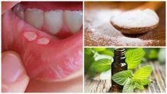Hai le afte? Ecco 6 rimedi efficaci e naturali per eliminarle •