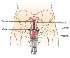Intracavitary Radiation Treatments for cancer of the cervix Female Reproductive System, Medical Coding, Endocrine System, Cancer