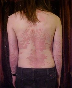 Excellent Natural Home Cure For Psoriasis