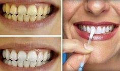 Vinagre de manzana para blanquear los dientes / Apple vinegar to whiten your teeth at home .....so simple !