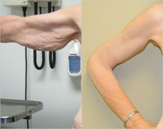 After signifigant wieght loss, patient was unhappy with the loose skin that remained on her arms. Patient underwent a brachioplasty (Arm Lift) and is very happy with the new shape of her arms.