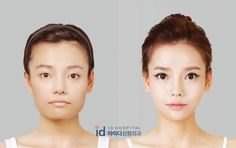 jaw reduction surgery korean men - Google Search