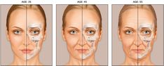 Bone - There is a significant loss of facial bone and age. Aging of the craniofacial skeleton may be due to changes in the relative dynamics of bone expansion and bone resorption leads to biometric volume loss.  Without the structural support of bone, there are noticeable changes in the other layers of overlying soft tissue and skin. Signs of Facial Aging  Greater visibility of bony landmarks, lines and wrinkles   Prominence of transverse forehead link   Nasolabial folds become more…
