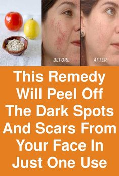 This remedy can peel off the dark spots and scars from your face One scars or spot on your face can ruin the day for you. But this ugly scars keep on coming up. We all wish to have smooth clear skin on face, but many things such as acne, pimples etc, leav Home Remedies For Acne, Skin Care Remedies, Acne Remedies, Natural Remedies, Age Spots On Face, Dark Spots On Skin, Brown Spots, How To Stop Pimples, Pimple Solution