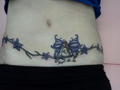 tummy tuck to remove excess skin from weightloss coverup tattoo