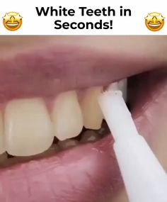 wedding beauty hacks Flawless Teeth Whitening Pen removes all unwanted stains and makes your teeth crystal white without causing any discomfort - its suitable even for sensitive teeth! Beauty Care, Beauty Skin, Beauty Hacks, Herbal Remedies, Health Remedies, Health And Beauty Tips, Health Tips, Teeth Care, Health Products