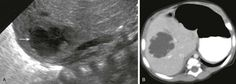 Pyogenic abscess in a 2-month-old boy with fever. A, A longitudinal sonogram of the right hepatic lobe reveals a hypoechoic region with irregular margins (arrow) and a halo of decreased parenchymal echogenicit