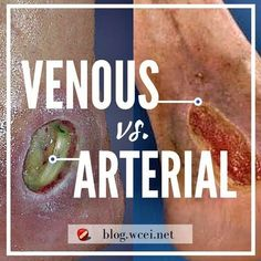 Venous, Arterial or Mixed Ulcer...How Do I Know For Sure? Proper assessment is essential for differentiating between venous and arterial ulcers.