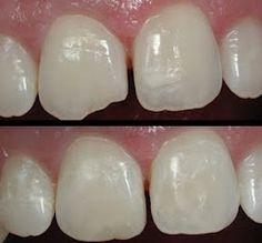 Cosmetic Dentistry ROCKS!!  #Dentist or #Hygienist