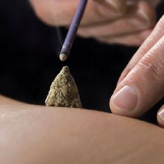 Moxibustion is a technique in which a stick or cone of mugwort and / or other herbs are placed on or over an acupuncture point. Moxa warms acupuncture points and adjacent areas to stimulate circulation and promote flow of blood and chi. Historians believe that moxibustion pre-dated acupuncture, possibly having its genesis around the time of the Yellow Emperor.