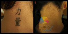 Tattoo Removal Before and After PicturesRethink the Ink Laser Tattoo Removal - Tattoo Removal - Best Tattoo Ideas Permanent Tattoo, Temporary Tattoo, Large Tattoos, Cool Tattoos, Tattoo Off, Diy Tattoo, Tattoo Removal Cost, Skin Grafting, Tattoo Cream