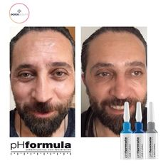 Excellent anti-ageing skin resurfacing results from our pHformula skin specialists in Turkey.  Thank you for sharing these great results @dorjebeauty #pHformula #skinresurfacing #artofskinresurfacing #antiaging #skinhealth #results #pHformulatr #skincareformen