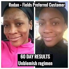Changing skin..changing lives AGAIN!  Melissa Joy is a Personal Trainer who was constantly battling clogged pores and breakouts. She decided to take the 60 day challenge and used Rodan + Fields UNBLEMISH Regimen. Just look at her results... Gorgeous!! LOVE that RADIANT GLOW!!   Nothing like the clear skin confidence that UNBLEMISH delivers! Are you ready to give it a try? With our 60 Day money back guarantee you have nothing to lose, and SO MUCH to gain!  Message me