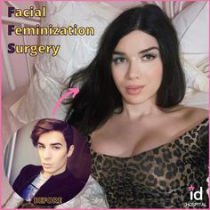Forehead Reduction, V Line Surgery, Facial Feminization Surgery, Korean Plastic Surgery, Thread Lift, Female Transformation, Rhinoplasty, Gorgeous Women, Beautiful