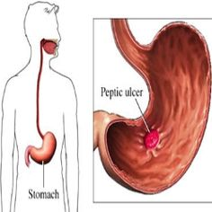 6 Amazing Home Remedies For Ulcers