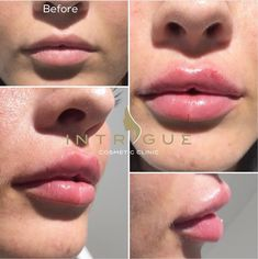 Resultado de imagem para 1 ml fillers before and after Dermal Fillers Lips, Cheek Fillers, Facial Fillers, Botox Fillers, Lip Line Filler, Chin Filler, Lip Injections Juvederm, Botox Lips, Charms