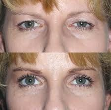 If you want to know about eyelid surgery and top surgeon Dr James Platis just click this photo for more information .......