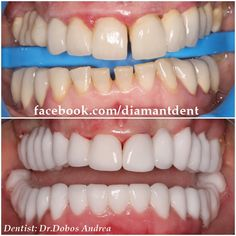 Fancy Dental Crowns Before And After Watches Tooth Extraction Aftercare, Tooth Extraction Healing, Dental Implant Surgery, Teeth Implants, Dental Bridge Cost, Sugar Cookies Recipe, Cookie Recipes, Teeth Braces, Dental Crowns
