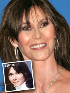 worst 45 - Plastic Surgery Gone Wrong