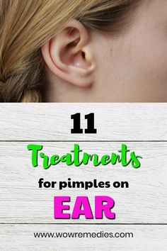 Pimple in Ear Causes and Treatment #PimplesOnForehead Ear Pimple, Blind Pimple, Pimples In Ear, How To Treat Pimples, What Causes Pimples, Pimples Remedies, Natural Acne Remedies, Skin Treatments