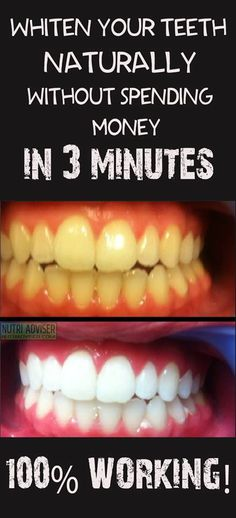 Whiten Your Teeth Naturally Without Spending Money In 3 Minutes, 100% Working