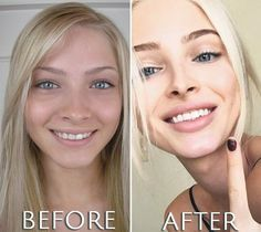 Lip Surgery, Eyelid Surgery, Lip Implants, Plastic Surgery Before After, Botched Plastic Surgery, Alena Shishkova, Botox Injections, Teeth Bleaching, Operation