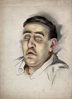 World War I: the face of a soldier suffering from the effects of phosgene gas poisoning. Pastel by A.K. Maxwell, ca. 1915. | Wellcome Collection